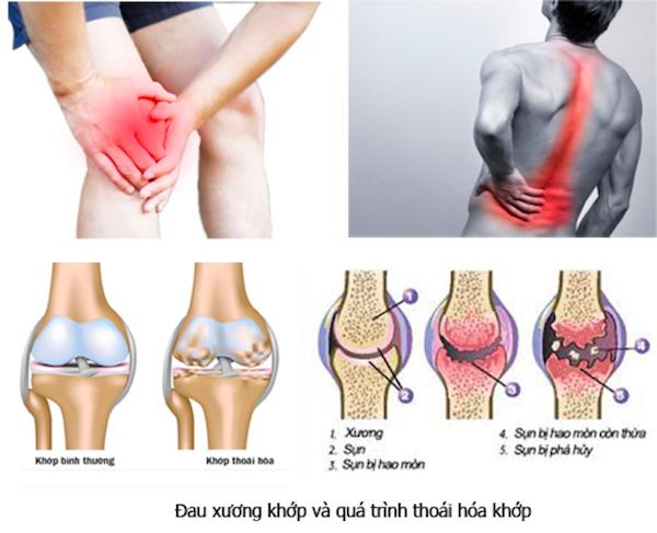 Thuốc tây trị đau nhức xương khớp - Tạm biệt những cơn đau nhức xương khớp chưa bao giờ dễ dàng đến thế